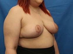After Results for Breast Reduction