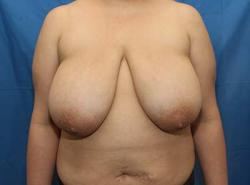 Before Results for Breast Reduction