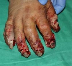 Before Results for Wound Care, Hand Surgery