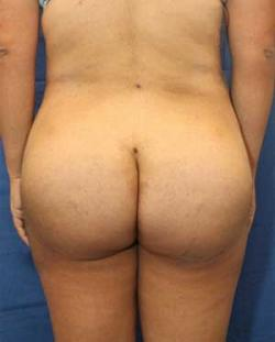 After Results for Gluteal Augmentation