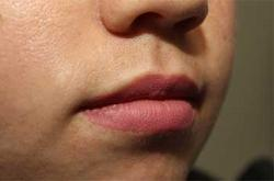 After Results for Lip Augmentation