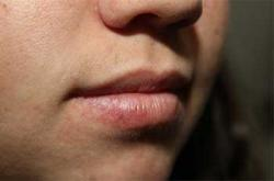 Before Results for Lip Augmentation