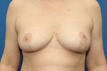 After Results for Breast Lift