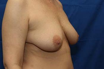 Before Results for Breast Lift