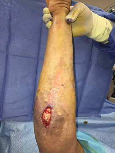 Before Results for Wound Care