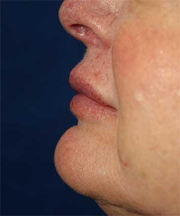 After Results for Tissue Fillers