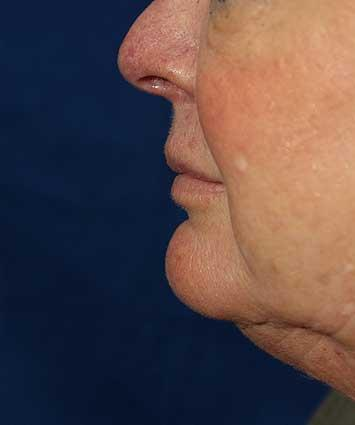 Before Results for Tissue Fillers