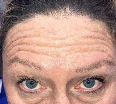 Before Results for Botox