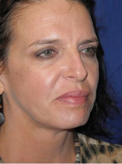 After Results for Facelift, Neck Lift