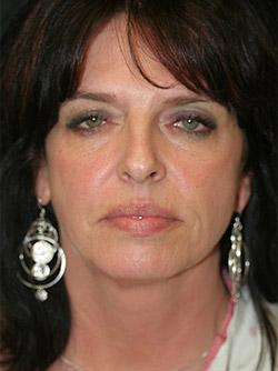 Before Results for Facelift, Neck Lift