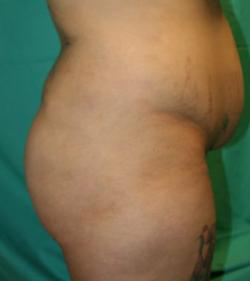 Before Results for Gluteal Augmentation
