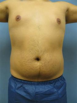 Before Results for Liposuction, Gynecomastia