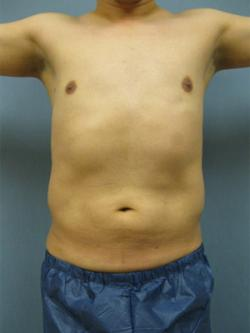 After Results for Liposuction, Gynecomastia