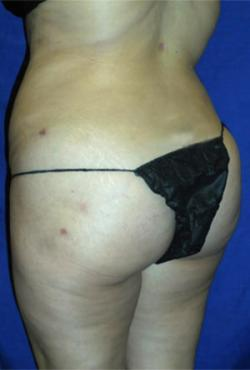 After Results for Liposuction, Gluteal Augmentation