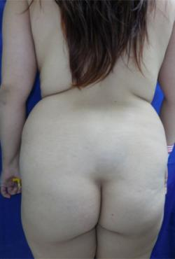 Before Results for Liposuction, Gluteal Augmentation