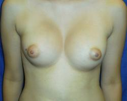After Results for Breast Augmentation