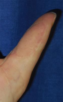 After Results for Wound Care