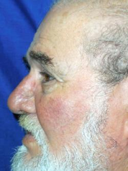 After Results for Skin Cancer
