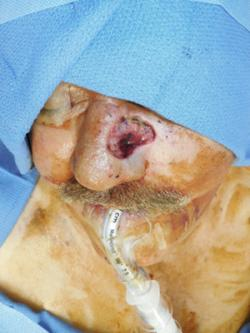 Before Results for Skin Cancer