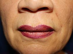 After Results for Tissue Fillers, Lip Augmentation