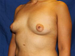 Before Results for Breast Augmentation