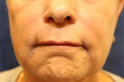 After Results for Botox