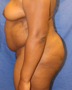 After Results for Tummy Tuck, Gluteal Augmentation