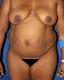 Before Results for Tummy Tuck, Gluteal Augmentation