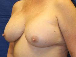 After Results for Breast Augmentation, Implant Exchange and Removal