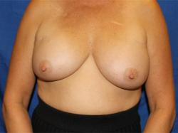 Before Results for Breast Augmentation, Implant Exchange and Removal