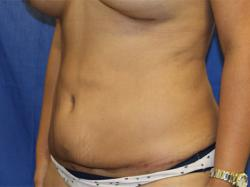After Results for Tummy Tuck