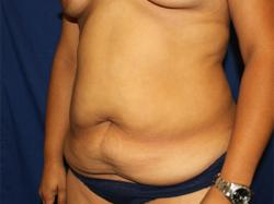 Before Results for Tummy Tuck
