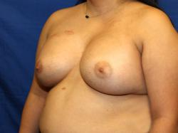 After Results for Breast Augmentation, Breast Reconstruction