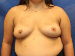 Before Results for Breast Augmentation, Breast Reconstruction