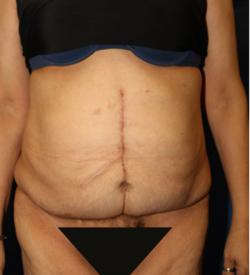 After Results for Panniculectomy