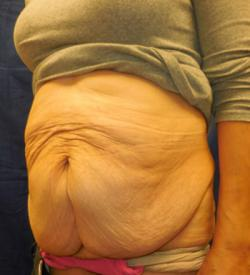 Before Results for Panniculectomy