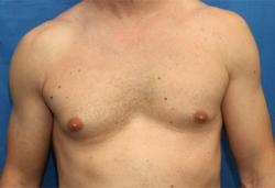 Before Results for Gynecomastia