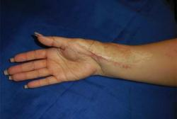 After Results for Wound Care, Hand Surgery