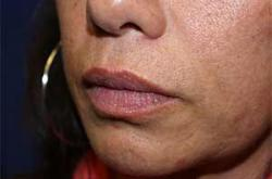 Before Results for Tissue Fillers, Lip Augmentation