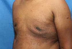 After Results for Gynecomastia